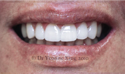 Cosmetic Dentistry - Smile 10 after