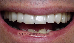 Cosmetic Dentistry - Smile 11 after