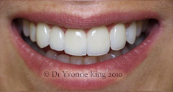 Cosmetic Dentistry - Smile 12 after