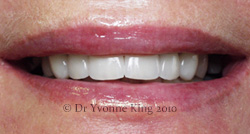 Cosmetic Dentistry - Smile 13 after