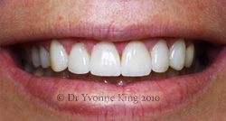 Cosmetic Dentistry - Smile 14 after