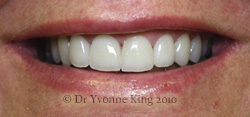 Cosmetic Dentistry - Smile 15 after
