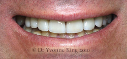 Cosmetic Dentistry - Smile 16 after
