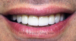 Cosmetic Dentistry - Smile 17 after