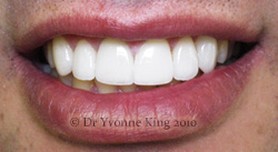 Cosmetic Dentistry - Smile 18 after