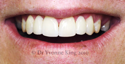 Cosmetic Dentistry - Smile 19 after