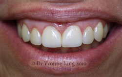 Cosmetic Dentistry - Smile 1 after