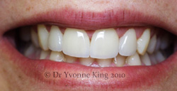 Cosmetic Dentistry - Smile 20 after