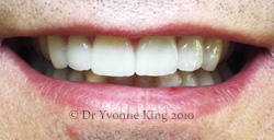 Cosmetic Dentistry - Smile 21 after