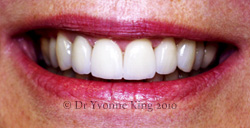 Cosmetic Dentistry - Smile 23 after