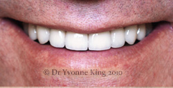 Cosmetic Dentistry - Smile 24 after