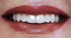 Cosmetic Dentistry - Smile 2 after