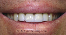 Cosmetic Dentistry - Smile 4 after