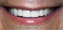Cosmetic Dentistry - Smile 5 after