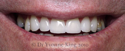 Cosmetic Dentistry - Smile 6 after