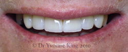 Cosmetic Dentistry - Smile 7 after