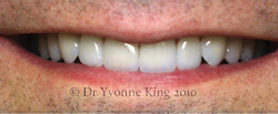 Cosmetic Dentistry - Smile 8 after