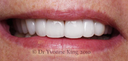 Cosmetic Dentistry - Smile 9 after