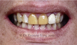 Cosmetic Dentistry - Smile 10 before