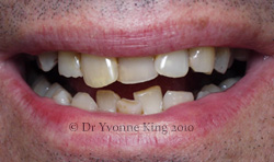 Cosmetic Dentistry - Smile 11 before