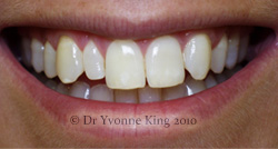 Cosmetic Dentistry - Smile 12 before