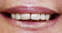 Cosmetic Dentistry - Smile 13 before
