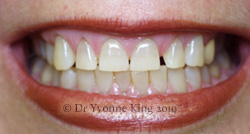 Cosmetic Dentistry - Smile 14 before