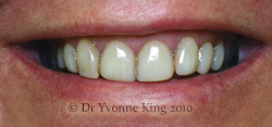 Cosmetic Dentistry - Smile 15 before