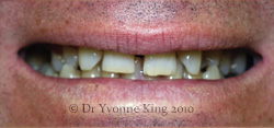 Cosmetic Dentistry - Smile 16 before