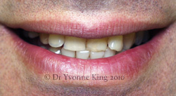 Cosmetic Dentistry - Smile 17 before