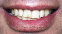 Cosmetic Dentistry - Smile 18 before