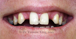 Cosmetic Dentistry - Smile 19 before