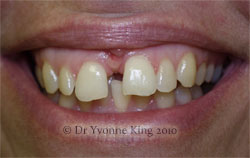 Cosmetic Dentistry - Smile 1 before