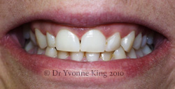 Cosmetic Dentistry - Smile 20 before
