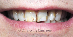 Cosmetic Dentistry - Smile 21 before