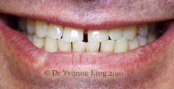 Cosmetic Dentistry - Smile 22 before