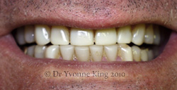 Cosmetic Dentistry - Smile 42 before