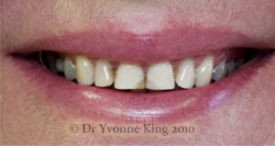 Cosmetic Dentistry - Smile 2 before