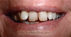 Cosmetic Dentistry - Smile 3 before