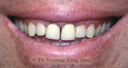 Cosmetic Dentistry - Smile 4 before