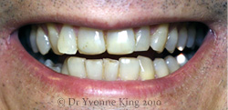 Cosmetic Dentistry - Smile 5 before