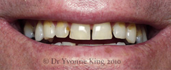 Cosmetic Dentistry - Smile 6 before