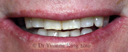 Cosmetic Dentistry - Smile 7 before