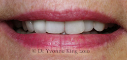 Cosmetic Dentistry - Smile 9 before