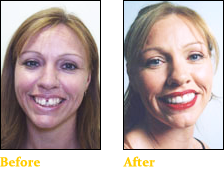 Cosmetic Dentistry - Smile 1