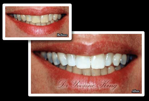 Teeth Whitening 3