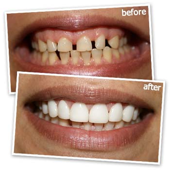 Cosmetic Dentistry by Glamsmile