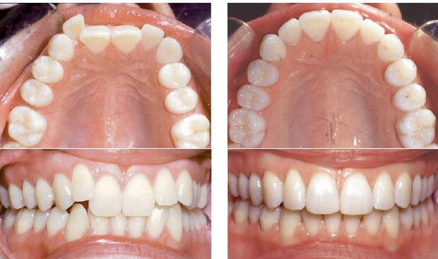 invisalign before after1 e1342063593771