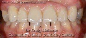 Dental Bridge By Dr Craig Mallorie After 2