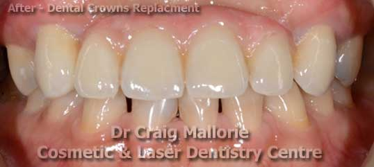 Dental Bridge Replacement - After